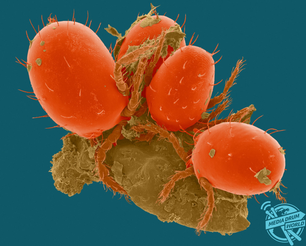 Coloured scanning electron micrograph (SEM) of Chiggers (Trombicula sp.), harvest mite larval ectoparasite, on human epidermis (skin). Trombicula is a genus of harvest mites (also known as red bugs or berry bugs) from the Trombiculidae family. In their larval stage they are known as chiggers (or chigoe) and they attach to various animals, including humans, rabbits, toads, box turtles, quail, and even some insects. After crawling onto their hosts, they inject digestive enzymes into the skin that break down skin cells. They do not actually bite, but instead form a hole in the skin called a stylostome, and chew up tiny parts of the inner skin, thus causing severe irritation and swelling. This feeding process on skin causes severe itching. The larval stage is parasitic on humans and causes the disease called chigger dermatitis. Magnification: x26 when shortest axis printed at 25 millimetres. SPL / mediadrumworld.com