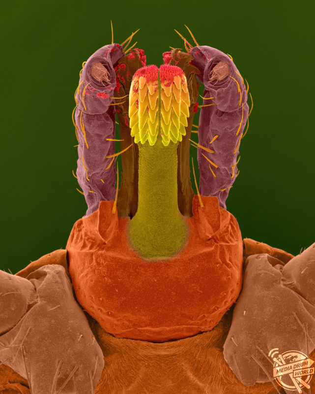 Coloured scanning electron micrograph (SEM) of Lone star tick head (Amblyomma americanum). A common 'wood tick' that includes other members, such as, the brown dog tick and the American dog tick. The mouthparts are a piercing and sucking type. The tick feeds by making a small incision in the skin with their barbed and piercing mouthparts. They insert their mouthparts and set the anchoring barbed teeth (hypostomer) in to the skin. They then secrete a fluid that cements their mouthparts into the skin. Lone star ticks live in wooded areas with underbrush, along creeks and rivers near animal resting places. Tick bites can be painful and cause localized inflammation, swelling and loss of blood. They may transmit disease agents, such as, ehrlichiosis, Rocky Mountain spotted fever, Lyme disease and tularemia. Magnification: x22 when shortest axis printed at 25 millimetres. SPL / mediadrumworld.com