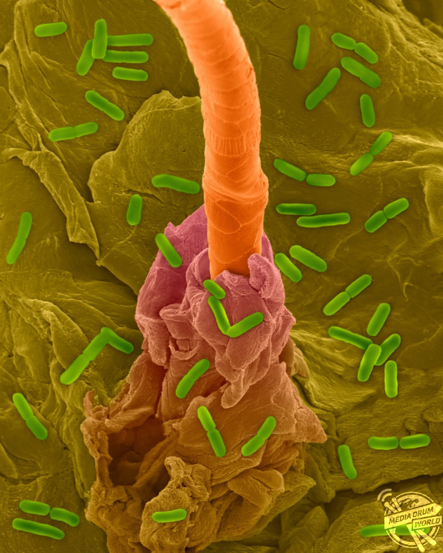 Coloured scanning electron micrograph (SEM) of Photocomposite, E. coli on the surface of human skin and hair follicle. Human skin (epidermis) with hair emerging from hair follicle. Numerous desquamating cells are concentrically arranged around the base of the hair shaft. Escherichia coli is a Gram-negative, facultatively anaerobic, enteric, rod prokaryote. This bacterium is normally a part of the human and animal microbiota. Most E. coli strains are harmless, but some strains can cause serious problems such as: food poisoning, urinary tract infections, traveller's diarrhoea and nosocomial infections. The E. coli 0157:H7 strain is fatal to humans if contracted when contaminated meat is cooked inadequately. Dennis Kunkel Microscopy/ SPL / mediadrumworld.com