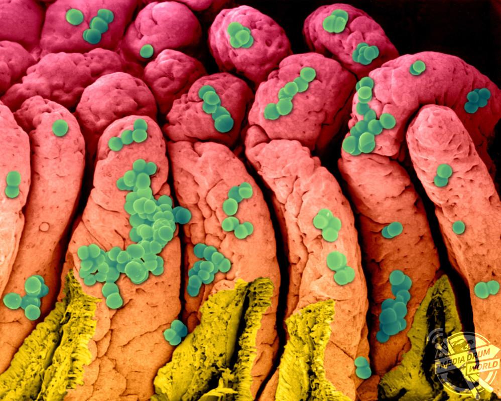 крой фото бактерий человека на теле перевода