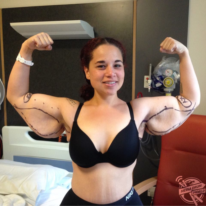 Meet The Woman Whose Extreme Weight Loss Left Her Needing Skin
