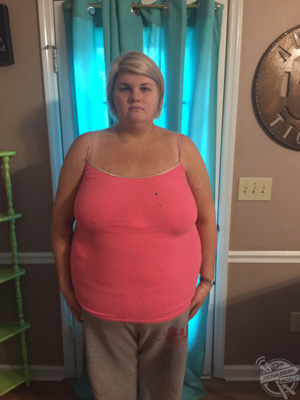 Hyperthyroidism Made This Woman Gain A 'Spare Tire' And ...