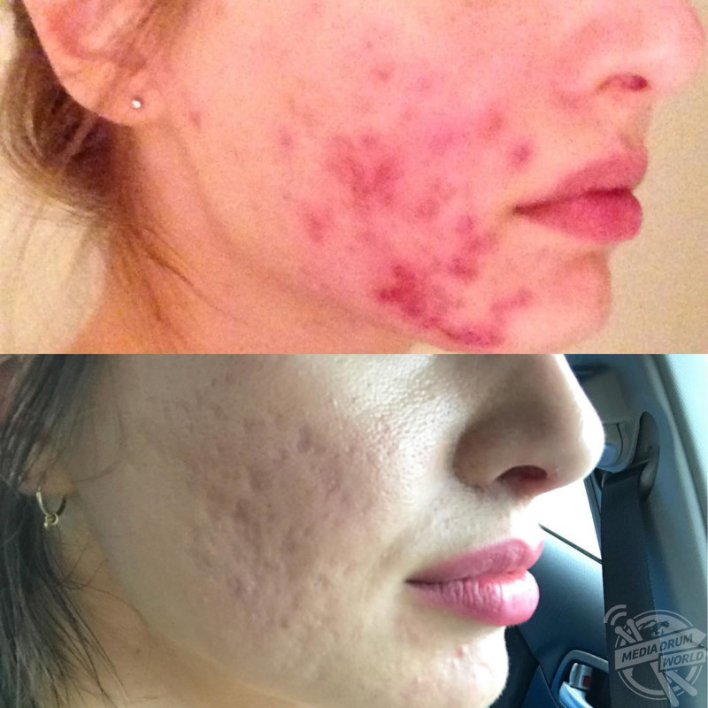 This Girl Developed Severe Cystic Acne That Left Her Face Permanently Scarred But Is Embracing Her Natural Look Despite Her Family Telling Her Cover It Up Media Drum World