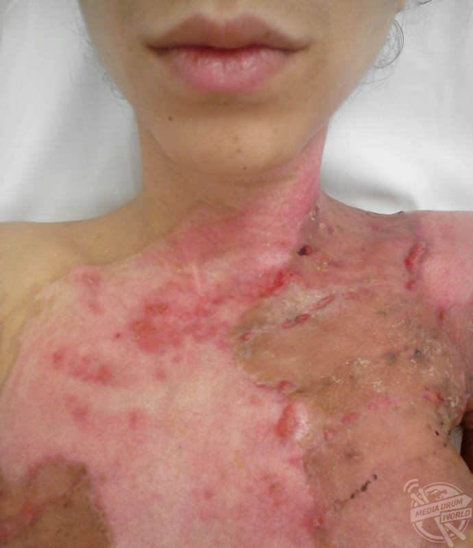 Now Embracing Her Burn Scars, This Student Endured A