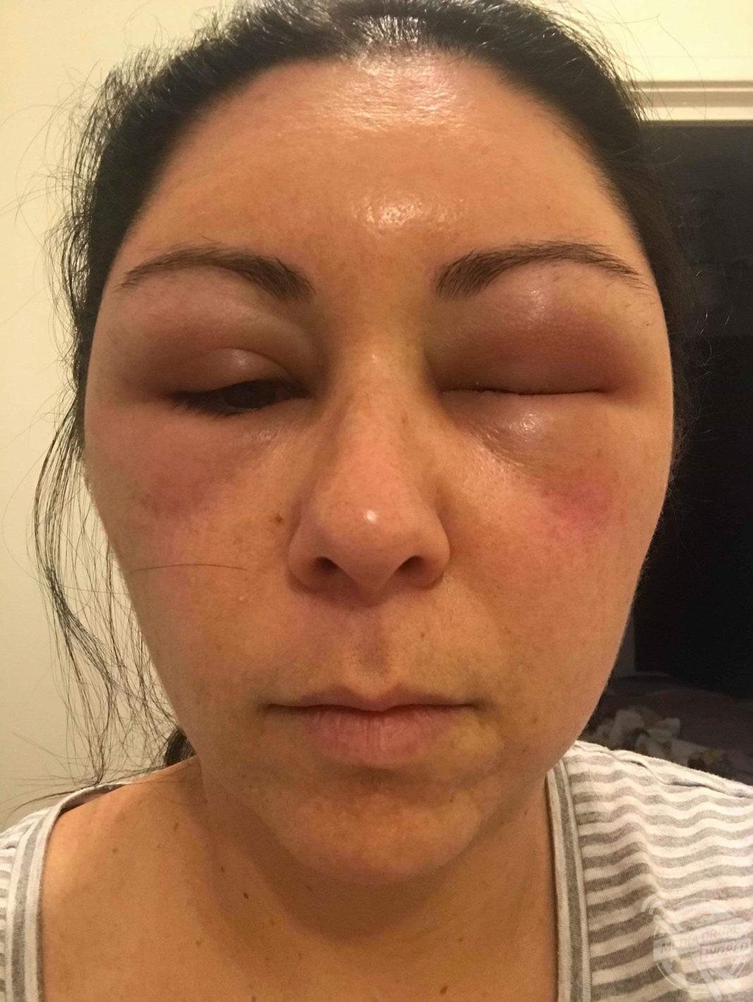 Facial edema due to allergic reaction — img 13